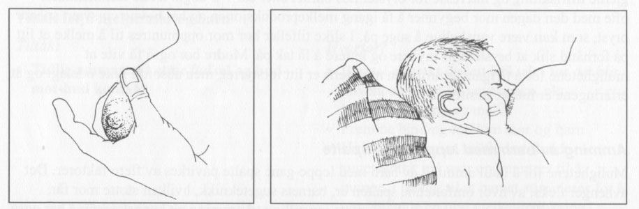 leppe-ganespalte